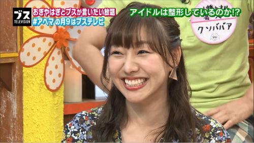 SKE48須田亜香里が失言!? 「(整形)してる子も…」