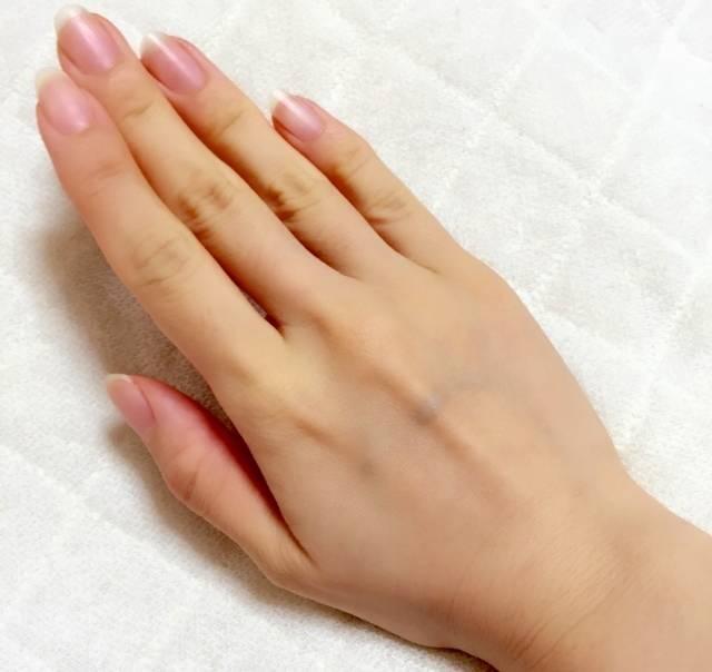 深爪で悩んでいる方必見!矯正で美しいネイルに生まれ変わる!