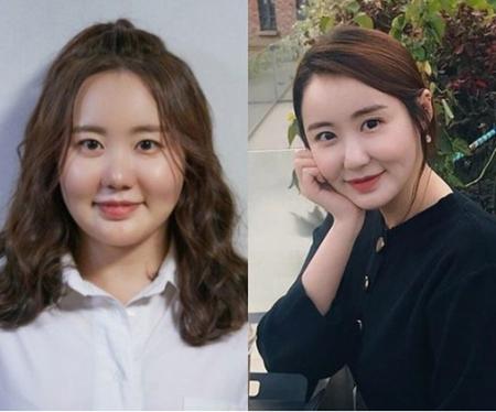 役作りで9キロ増量した韓国女優イ・イェリムが、ダイエットでスリムになった姿を披露した。(写真提供:OSEN)