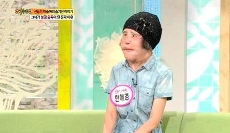 """""""扇風機おばさん""""死去のニュースが日本でも話題に…異物除去手術を施した高須院長もSNSで追悼(提供:news1)"""